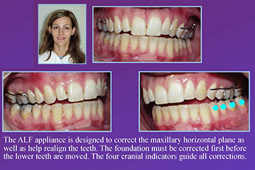 Orthodontics Beyond the Pretty Smile
